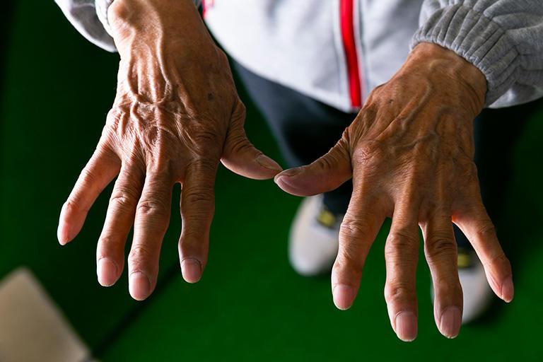 長年型付け作業を続けてきた江頭さんの職人の手。親指が反っている。